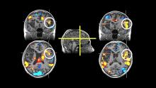 Four brain scan images